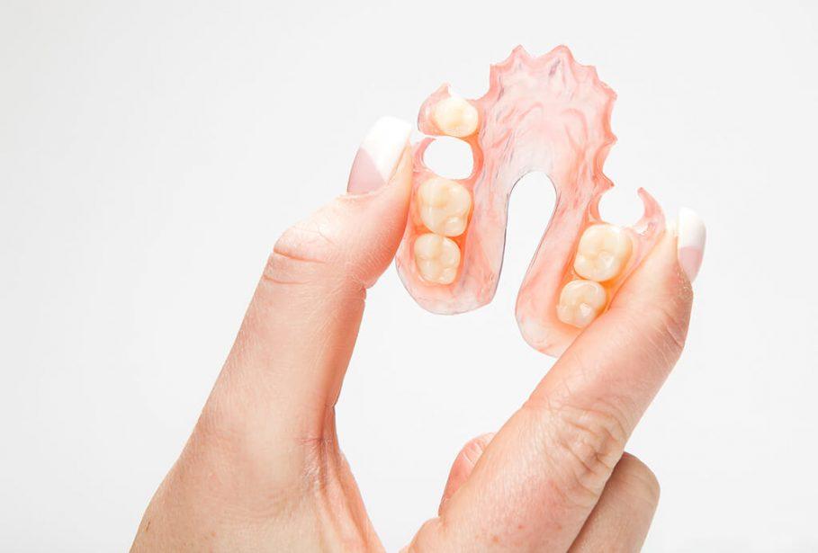 Valplast dentiste chamant