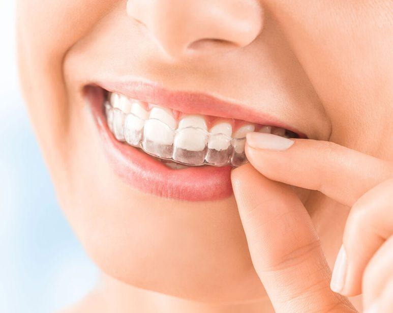 aligneur orthodontiste dentiste chamant