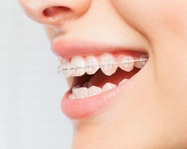 bagues ceramiques orthodontiste dentiste chamant
