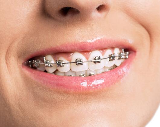 bagues metalliques orthodontiste dentiste chamant
