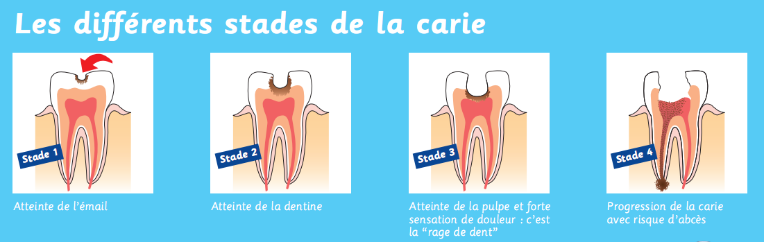 Source : www.laboratoire-medident.fr