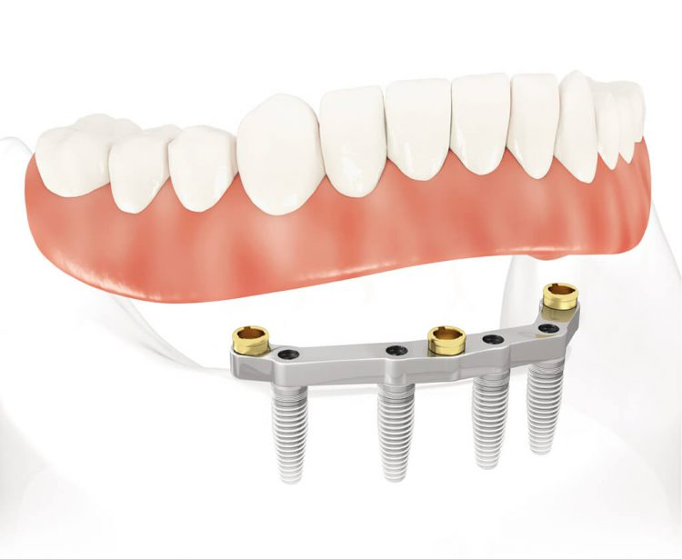 implants PACSI barre dentiste chamant