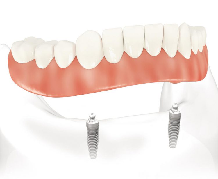 implants PACSI dentiste chamant